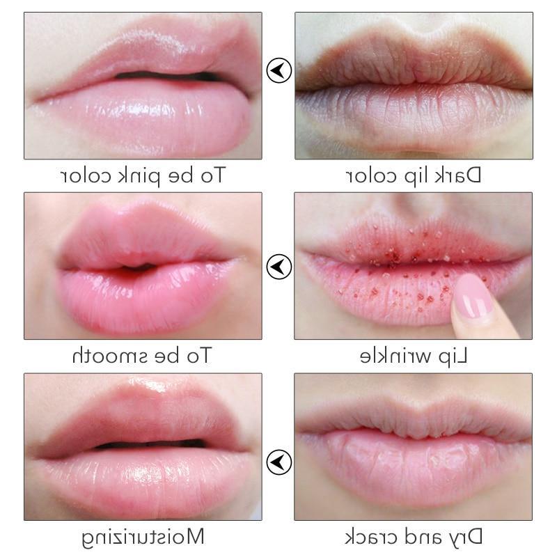 Daralis <font><b>Shea</b></font> <font><b>Balm</b></font> Scrub Lipstick Lipbalm Anti Exfoliating <font><b>Lip</b></font> <font><b>Balm</b></font> Nonstick for Care