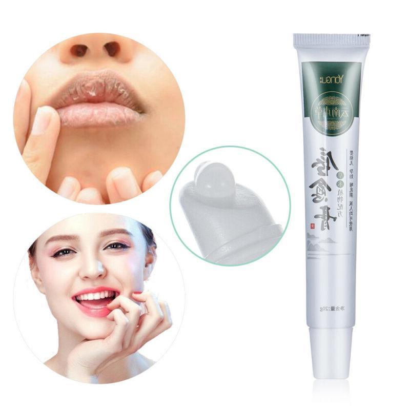 Moisturizing Cold Sores Treatment Lip