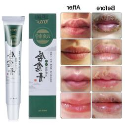 moisturizing lip cream cold sores cheilitis treatment